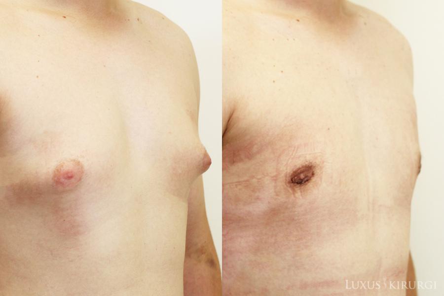 Фото после удаления груди